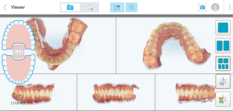 Article-alignement-Fig-5-Interface-ClinCheck