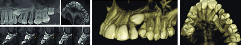 Image-canine-inclusive-maxillaire-CBCT