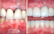 Vignette-Site-Reponses-Experts-Dentisterie-Orthodoxe-Compromis-Therapeuthique
